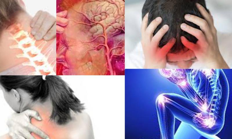 Migren Nedir, Belirtileri Nelerdir