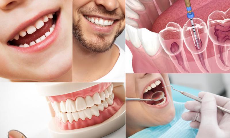 Estetik Diş Dolgusu Nedir?