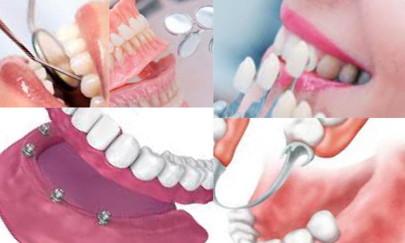 Protez Diş Nedir, Protetik Diş Tedavisinde Kullanılan Protez Türleri Nelerdir