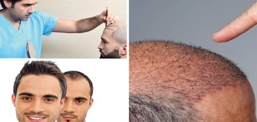 Saç Ekimi Esnasında Canınız Yanar mı